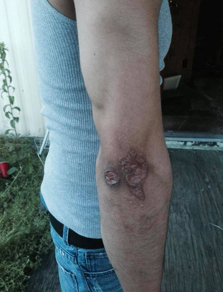 Workers' compensation -worker burned